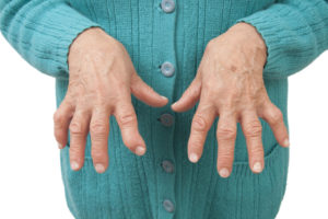 Rheumatoid Arthritis clinical trials